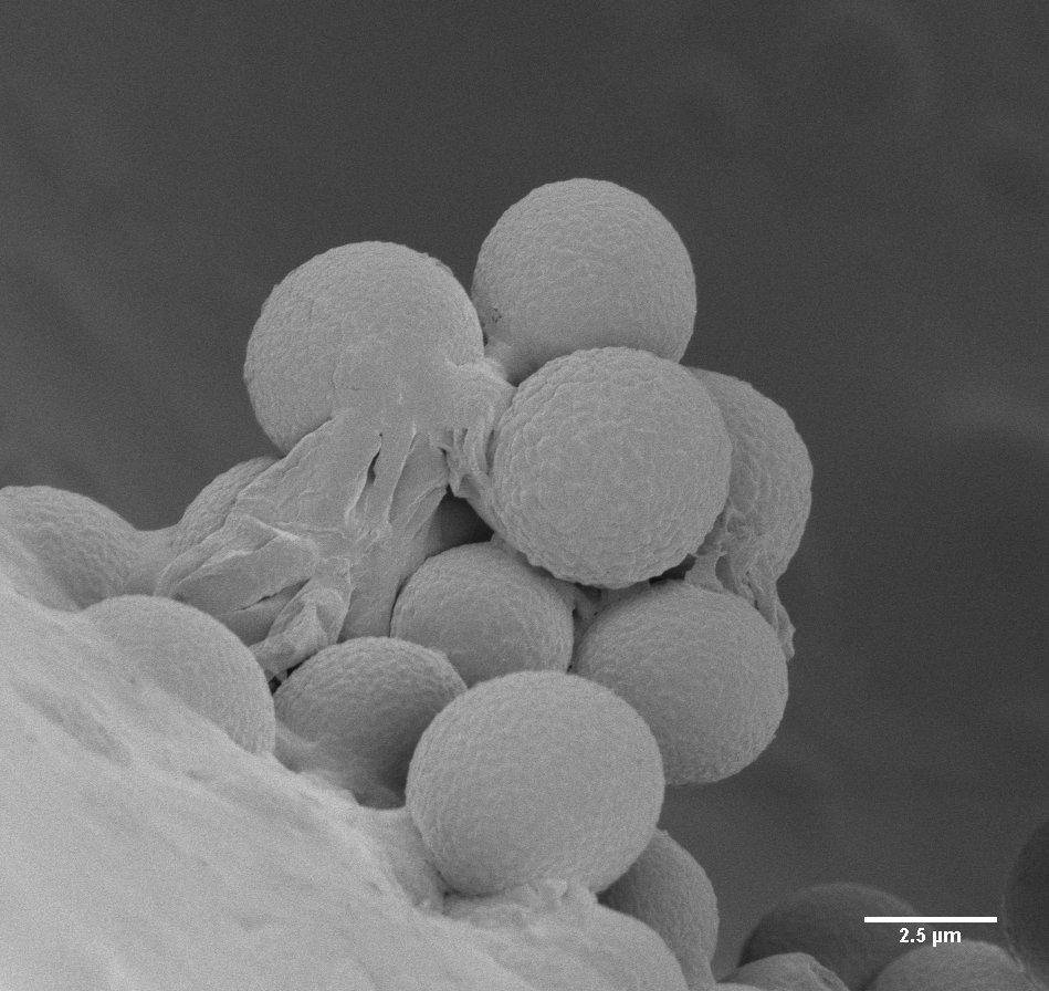 Blue cheese (fractured) showing Penicillium spores (Karin Müller, CAIC, Cambridge)
