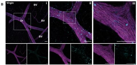 3D confocal microscopy. See figure 1 in paper for details