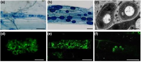 Examples of micrographs produced by a range of techniques in the study of arbuscular mycorrhizal symbiosis (brightfield, TEM and confocal microscopy).