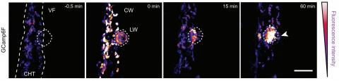Two-photon ablation and imaging. See Fig. 1