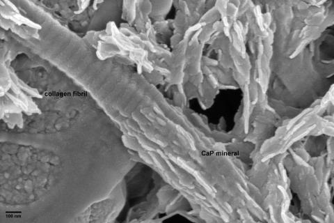 Bovine tendon collagen induced to mineralize in vitro (Karin Müller, Melinda Duer Group, Department of Chemistry, Cambridge).